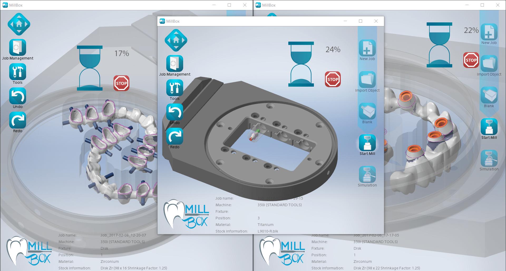 MillBox - Features - CIMsystem Dental